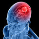 Multidisciplinary Neuro-Oncology Tumor Board (Videoconference)