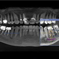 Fundamentals of Cone Beam CT Safety and Technology