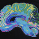 Free Public Lecture on How Brain Grows
