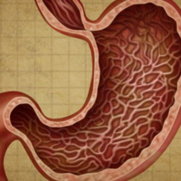 Stomach Cancer: Treatment Options and Coping with Side Effects