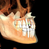 Diagnosis and Treatment of Dental Cases: A Multidisciplinary Approach