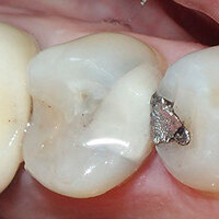 Silver Diamine Fluoride (SDF) and Glass Ionomer Cement (GIC)