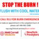 Burn Awareness Wednesday